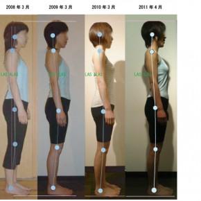 ビフォーアフター〜ピラティスによる姿勢の変化〜5年分
